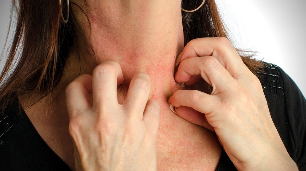 Alergia a bijuteria 1